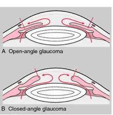 Glaucom Open and closed angle